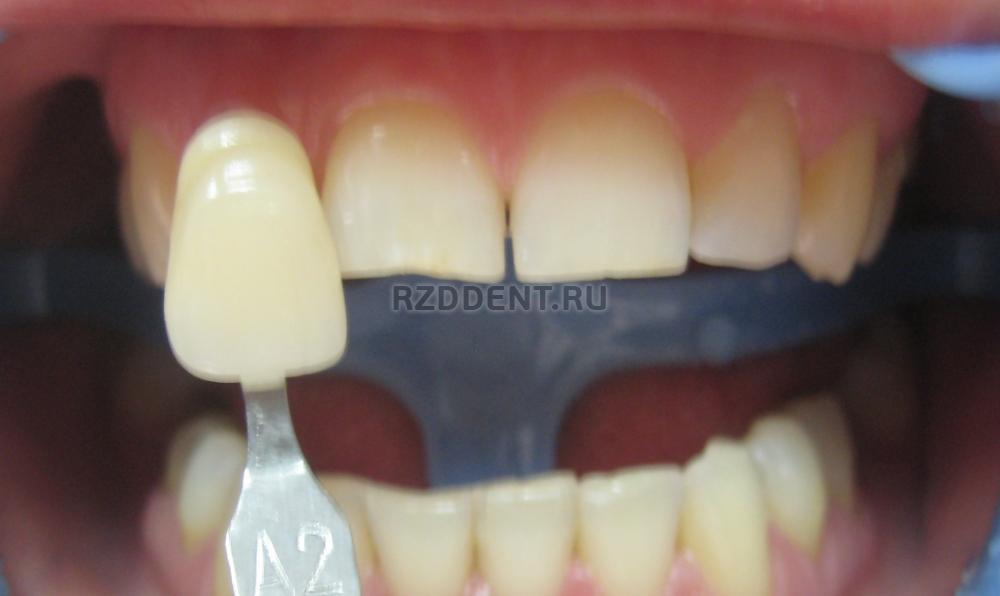 ламповое отбеливание зубов отзывы