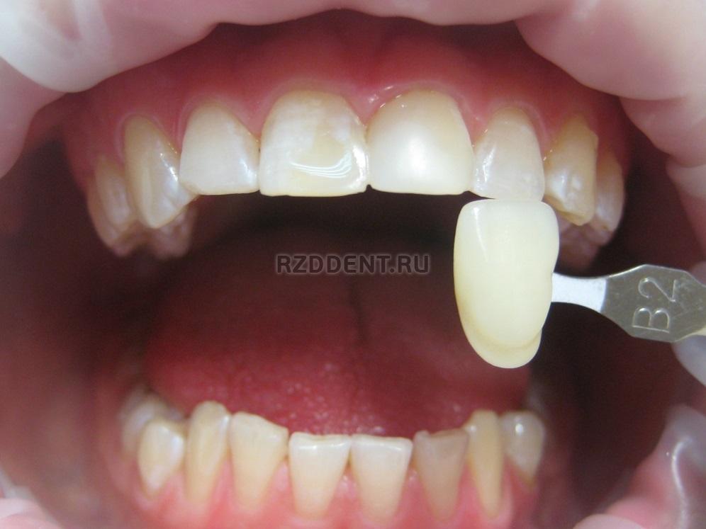 ламповое отбеливание зубов бьенд новосибирск
