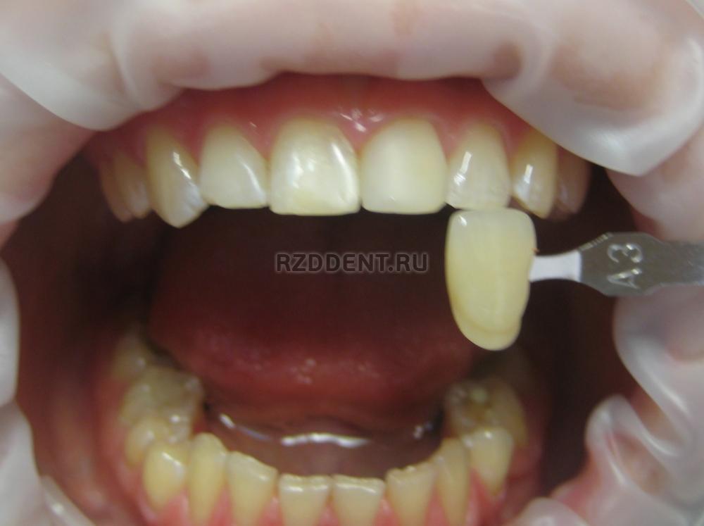 отбеливание зубов по купону отзывы