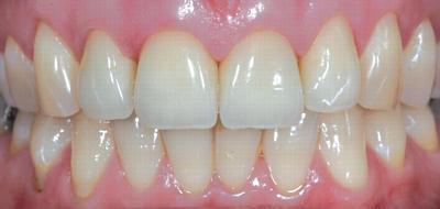Протезирование зубов коронками из диоксида циркония