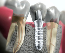 Имплантация - отличия от протезирования