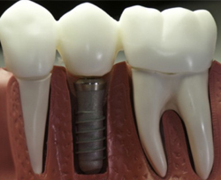 Вид имплантированного зуба